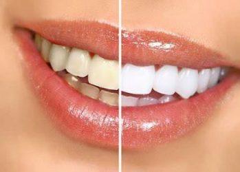 smile_transformation-1